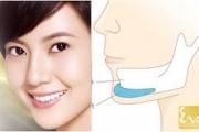 Khảo sát chấn thương vùng cằm với lồi cầu xương hàm dưới tại BVĐKKVT